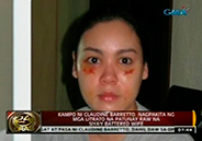 Raymart Santiago camp says scars of Claudine are from