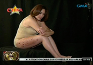 Claudine Barretto shows deep wounds, scars in photo shoot