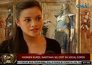 Yasmien Kurdi diagnosed with a cyst in vocal cords