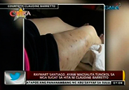 Raymart Santiago refuses to talk about wounds and scars of Claudine Ba