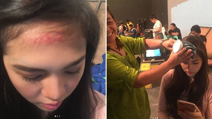 Janella figures in accident while shooting film; Elmo reacts