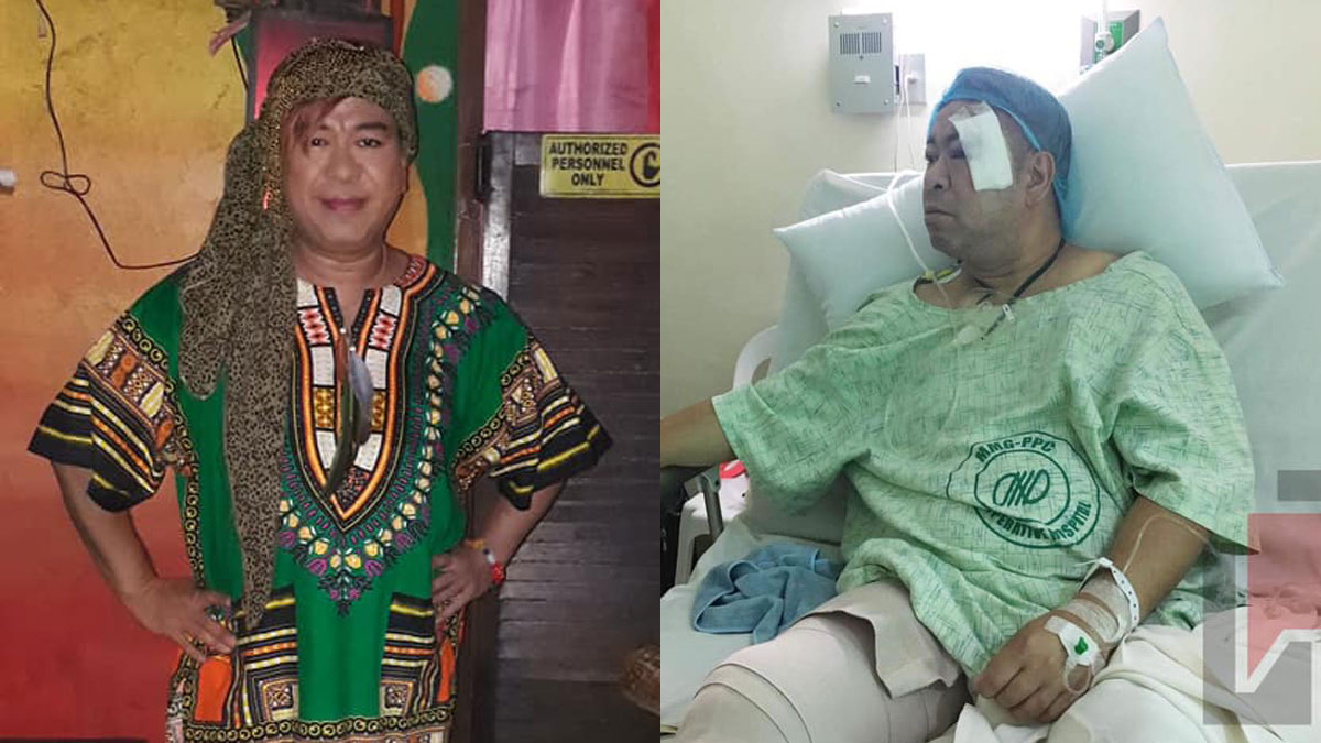 Eagle Riggs figures in motorcycle accident in Palawan