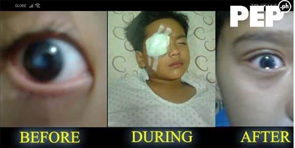 Daniel dela Cruz before and after