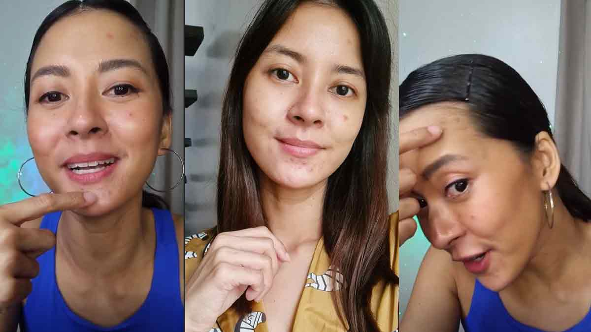 Bianca Gonzalez opens up about her acne breakouts