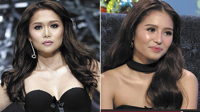 Miho Nishida confirms undergoing cosmetic surgery