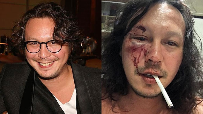 Baron Geisler claims he got beaten up by his brother-in law