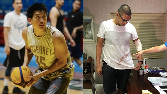 Jeron Teng sustained deep cut wound, says brother Jeric