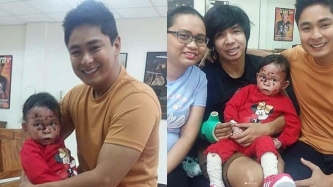 Coco Martin grants simple wish of a child with rare skin disease