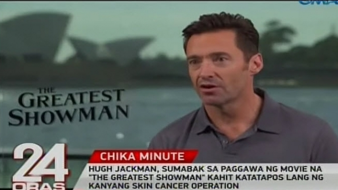Hugh Jackman bled while doing movie