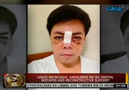 Lance Raymundo out of hospital after undergoing reconstructive surgery