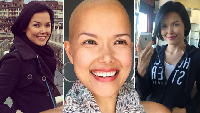Jaymee Joaquin reveals battle with breast cancer
